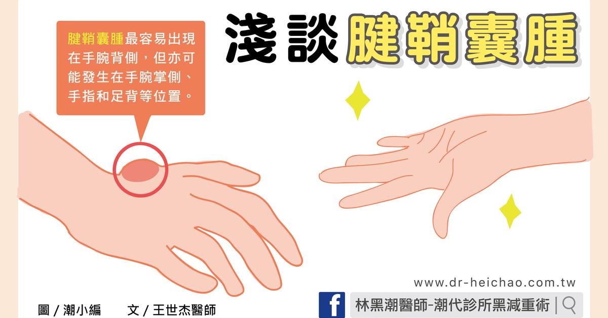 淺談腱鞘囊腫/文:王世杰醫師 - 潮代診所 林黑潮 減肥 減重 瘦身 門診 健康減重